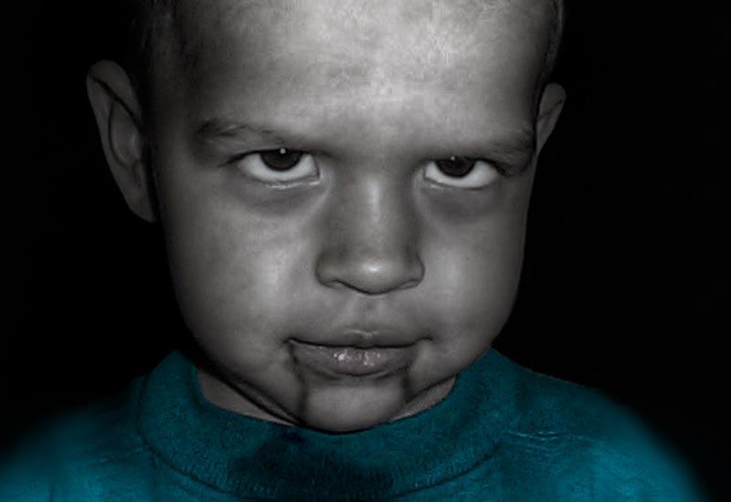 Zlo dijete